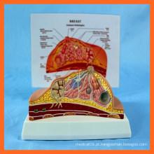 Modelo de Patologia de Peito Humano de PVC
