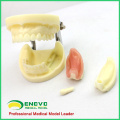 IMPLANT06(12617) Implant Practice Jaw Model with Lower Jaw for Flap and Drilling Practice