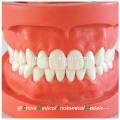 28pcs vis dents fixes dur gomme standard modèle dentaire 13002