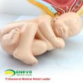 ANATOMY10 (12448) Klinische Medizin Schwangerschaft Becken - 40 Wochen Infant, Anatomie Modelle Schwangerschaft Becken mit Reifen Fetus