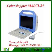 Scanner à ultrasons Doppler couleur portable portable (MDLCU34A) le plus cheré en 2016.