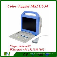 2016 cheapest Full-digital Laptop portable Color Doppler Ultrasound Scanner (MSLCU34A-laptop)