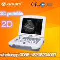 Precios del escáner de la vejiga de la clínica y máquina de escaneo portátil de ultrasonido