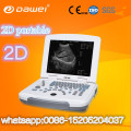 Preços de scanner de bexiga clínica & portátil ultra-sonografia máquina de varredura