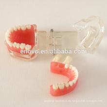 Modelo dental 13017 de la mandíbula dental de Gingiva suave desprendible modelo anatómico médico de China