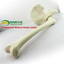 SIMULACIÓN MAYORISTA HUESO 12314 Anatomía Médica Cadera Artificial con Hueso Fémur, Ortopedia Práctica Simulación Hueso