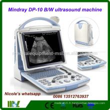 DP-10 Dernière machine à ultrasons portable Mindray CE FDA / machine à ultrasons portable avec sonde convexe et sonde transvaginale
