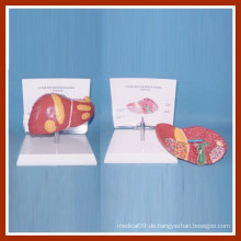 Menschliche Pathologien des Lebermodells mit Beschreibung Platte