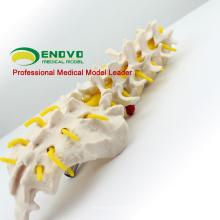 VERTEBRA01 (12384) Vértebras lumbares humanas de tamaño natural con el modelo de columna espinal lumbar sacro para la ciencia médica
