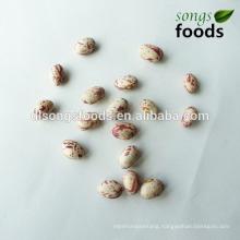 Kidney Buyer,Kidney Beans Soya Bean