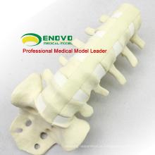 ATACADO POR ÓLEO DA SIMULAÇÃO 12313 Modelo anatômico da anatomia médica lombar, osso da simulação da prática da ortopedia
