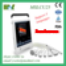 MSLCU25M Color Digital Ultrasonic Diagnostic Imaging System Protable Color Doppler Ultrasound machine for sale