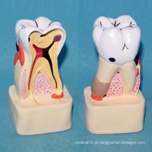 Modelo anatômico de cuidados dentários anatômicos de dentes decadentes para ensino (R080114)