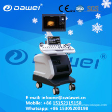 3D 4D Color Doppler Ultrasound scanner / portable ultrasound machine