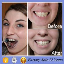 Dientes para blanquear la pasta dental con Oem de carbón activado