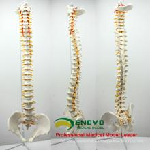 Spine Unique Order Enlace a CA-SPINE10 (12382) (válido 2018.2.15)