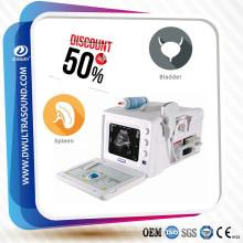 Sistema de Ultrasonido D / GYN 2D B / W Cardiaco Extendido de Clase Alta DW-3101A
