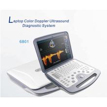 Полностью цифровой ультразвуковой сканер высокого качества (XT-FL038)