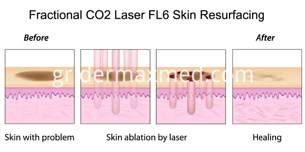 Laser Equipment CO2 Fractional