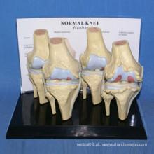 Modelo de Pele do corpo do esqueleto da articulação humana do joelho de alta qualidade (R020904)
