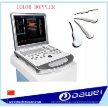 Varredor do ultra-som da ecografia de Doppler da cor de DW-C60Plus 3D