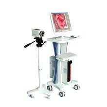 El mejor colposcopio electrónico médico