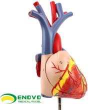 HEART02(12478) Новый медицинский анатомическая модель сердца в 2 части, Анатомия модели > модели сердца