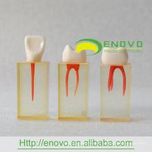 EN-N5 Agrandir Bloc Transparent de canal radiculaire avec paroi pulpaire colorée et couronnes