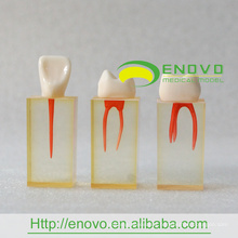 EN-N5 Enlarge Root Canal Transparent Block with Colored Pulpal Wall and Crowns