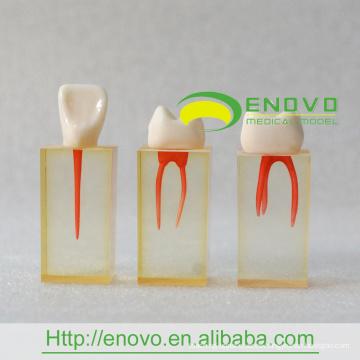 EN-N5 Agrandar Bloque transparente del conducto radicular con pared de pulpa coloreada y coronas