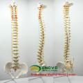 SPINE10 (12382) Качество медицинской науке анатомические модели ,колонны в натуральную величину позвоночника с тазом