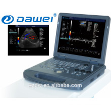 Laptop color doppler ultrasound price & echography DW-C60