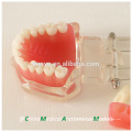 China Medical Anatomical Model Removable Soft Gingiva Standard Dental Jaw Model 13017