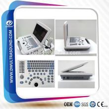 máquina de ecografía digital completa y ecografía DW500