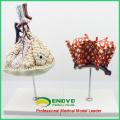 LUNG07 (12504) Modèle anatomique humain Lobule et alvéole du poumon, modèles d'anatomie> Respiratoire