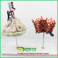LUNG07(12504) Human Anatomical Model Lobule and Alveolus of Lung , Anatomy Models > Respiratory