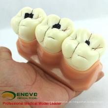 Verkaufen 12575 Karies Demonstration Zähne Modell für zahnmedizinische Lehre Kommunikation