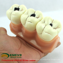VENDER Modelo de dientes de demostración 12575 caries para comunicación de enseñanza dental