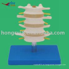 Vivid PVC Normal Lumbar Modelo (4 piezas)