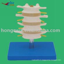 Modèle Lumbar Normal PVC PVC (4 pièces)