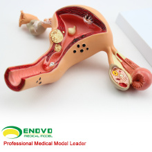 VERKAUF 12441 weibliche Gebärmutter zeigen gemeinsame Pathologien Anatomie Modelle