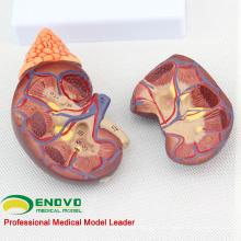 VENDRE 12433 Modèle d'anatomie rénale normale de la taille de la vie, modèle anormal de rein d'anatomie