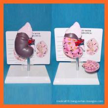 Medical Science Human Healthy Kidney Model