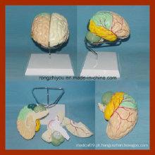 Modelo de cérebro com artérias por separação colorida (destacado pintado)