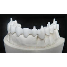 Dental Zirconia Crown