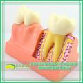 TOOTH21(12599) 4 четыре раза увеличить стоматологических структуры зуба анатомическая модель