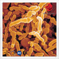 Bifidobacterium Infantis Bulk for Immune System Regulation