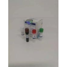Nuevos reactivos de detección de ácido nucleico de coronavirus