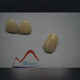 Biocompatibile dental zirconia Layered Crown