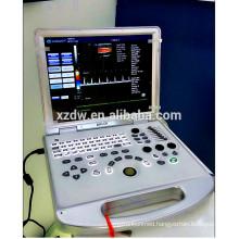 Portable Ultrasound/USG/Medical ultrasonography
